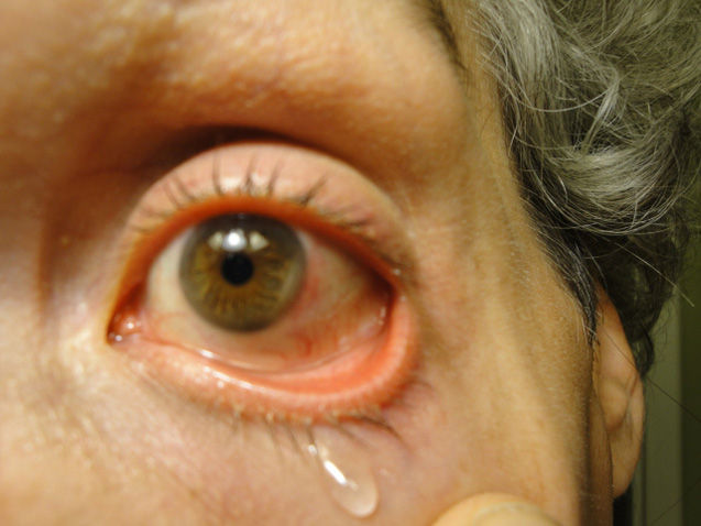 Cyclosporin Eye Drops: A magical steroid-sparing drug